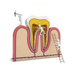 Skuteczne leczenie kanałowe zębów pod mikroskopem.